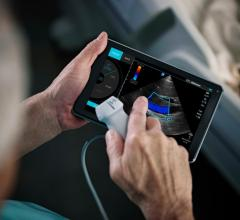 Fujifilm Sonosite, iViz ultrasound, mobile visualization, FDA clearance