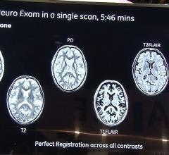Magic, sigma Pioneer, GE, multiple contrasts in one MRI scan