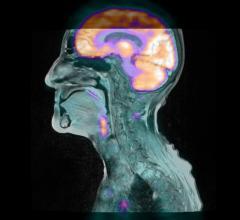 Mirada Medical, The Christie Hospital, England, PET-MRI, radiation therapy