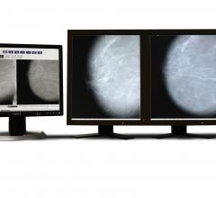 Parascript, AccuDetect 7.0, FDA approval, computed-aided detection for mammography