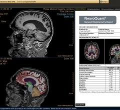 CorTechs Labs Receives FDA 510(k) Clearance for NeuroQuant for Quantitative Brain MRI Analysis