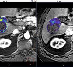 Philips, Intellispace Portal 8.0, oncology suite, EASL, RSNA 2015