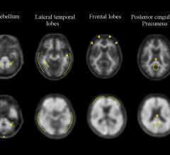 First U.S. Commercial Neuraceq Scan Beta-amyloid Plaque Imaging  WVU Healthcare