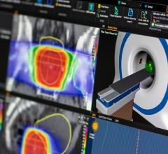 RayCare Oncology Information System Being Shown at ASTRO 2017