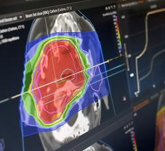 RaySearch and MD Anderson Collaborate on Development of RayCare