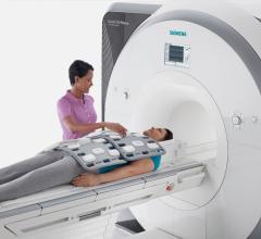 NASH, nonalcoholic steatohepatitis, MRI, MRI-PDFF, University of California San Diego study
