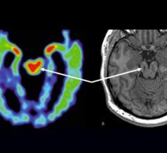 UCLA, chronic traumatic encephalopathy, CTE detection, MRI