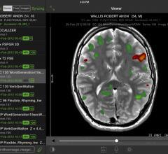 Visage Imaging, Visage Ease Pro, FDA clearance