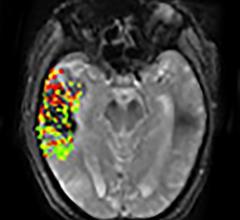 DEFUSE-2 studym, MRI, brain bleeding risk, post-stroke treatment, NIH