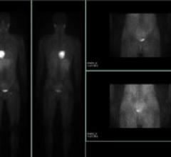 FDA Approval GE Healthcare's AdreView Nuclear Imaging SPECT systems