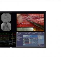 Barco, MultiSense Develop Telemedicine System for Heart Surgery Master Class