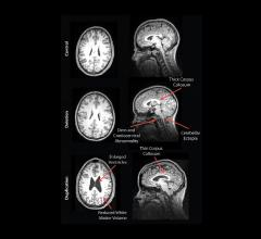 MRI Reveals Striking Brain Differences in People with Genetic Autism