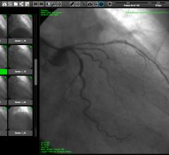 WebPAX, Heart Imaging Technologies, PACS, Cardiac PACS, Echo Imaging