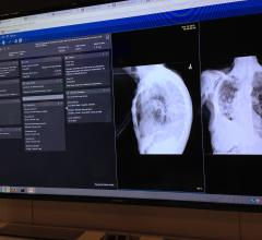 AI, deep learning, artificial intelligence, medical imaging, radiology