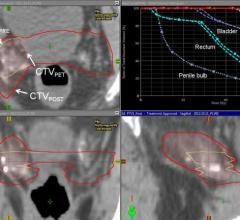PET/CT, recurrent prostate cancer, fluciclovine F-18, Emory University