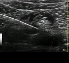 musculoskeletal, MSK, ultrasound, Soundwaves, Florida