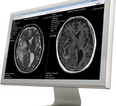 SyntheticMR Myelination Quantification Feature Receives CE Mark