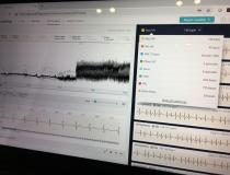 The company Cardiologs demonstrated for DAIC today at HIMSS 2019 its artificial intelligence ECG interpretation software. It has European CE mark and FDA clearances to detect a variety of arrhythmias from various ECG sources, from 1 to 12 lead. The AI uses a histogram of the digital data from the ECG (the fuzzy seismic-looking waveform in the photo) and the rhythm strip to interpret the exam. It was trained using pattern recognition with more than 1 million ECGs.