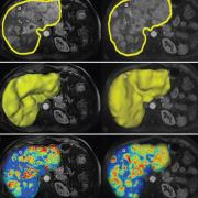 Liver cancer advanced imaging. Webinar will cover new advances for more precise targeting of Liver Cancer.