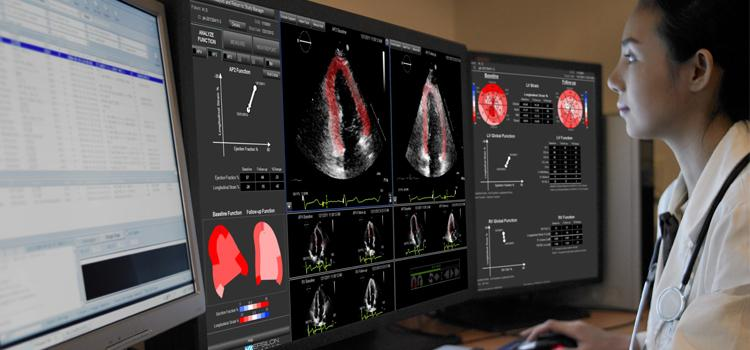 cardio-oncology, echo strain assessment